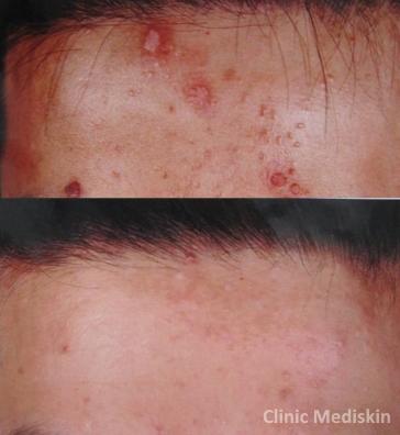 Triepithelioma removal